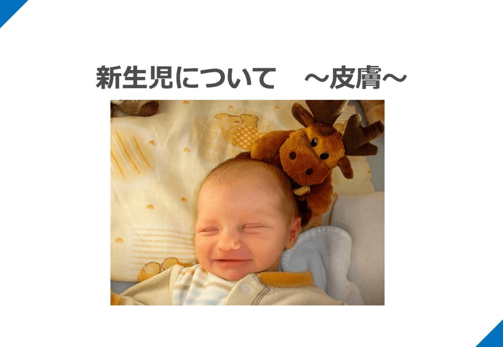 生理 黄疸 新生児 的 生理的黄疸について